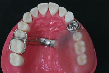 入れ歯 奥歯 の